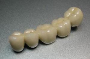 Коронковое шинирование зубов