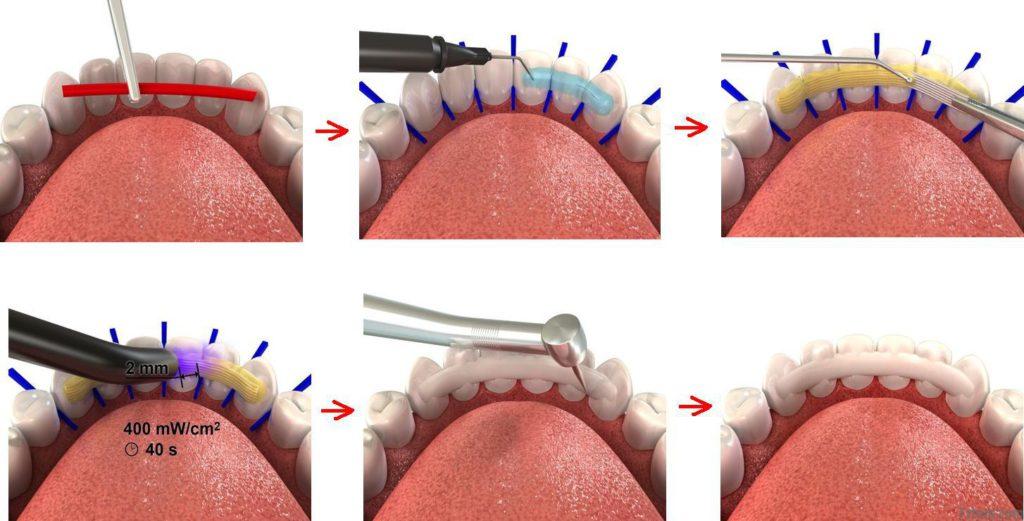 Способы шинирования зубов в стоматологии