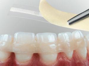 Шинирование зубов - виды шинирования