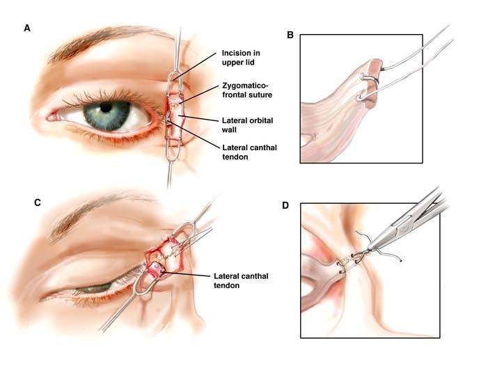 Кантопексия - пластика глаз с целью сделать восточный разрез