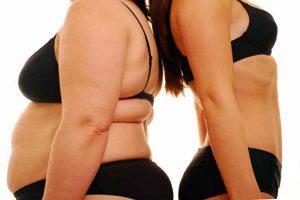 Уменьшение желудка хирургическим путем - какую операцию выбрать?