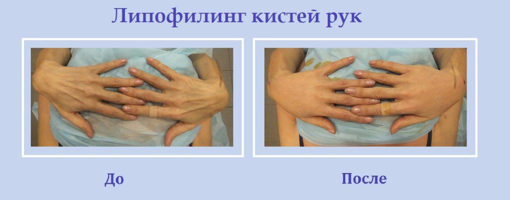 Липолифтинг кистей рук