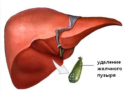 Удаление желчного пузыря при дискинезии