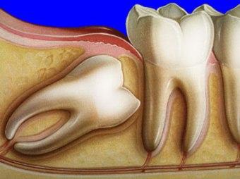Болят зубы мудрости - почему, и как лечить?