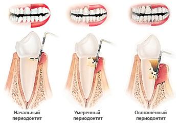 Три стадии периодонтита