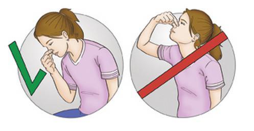 Как остановить кровотечение из носа - первая помощь