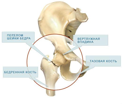 Причины и клиническая картина перелома шейки бедра