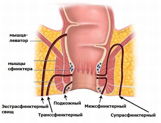 snyat-spazm-analnogo-sfinktera