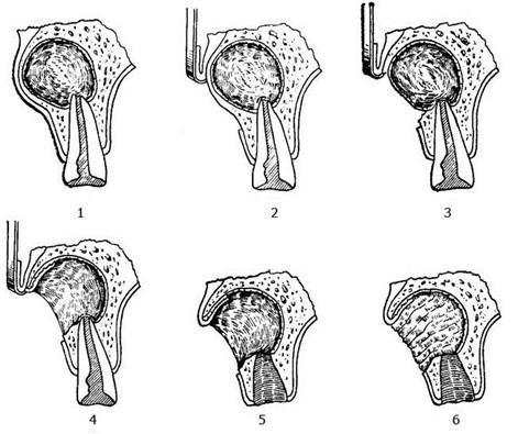 Периостит челюсти - хирургическое лечение, удаление свища десны