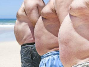 Мужская абдоминопластика - показания, виды операций