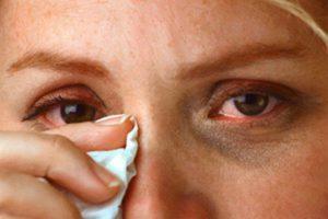 Степени ожогов глаз - как вовремя распознать ожог глаз и оказать первую помощь?