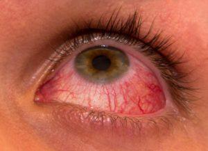 Красные глаза - симптом каких болезней?
