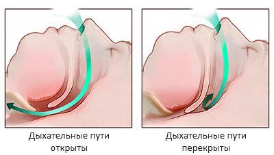 Лечение храпа - результаты операции