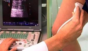 Дуплексное сканирование сосудов конечностей