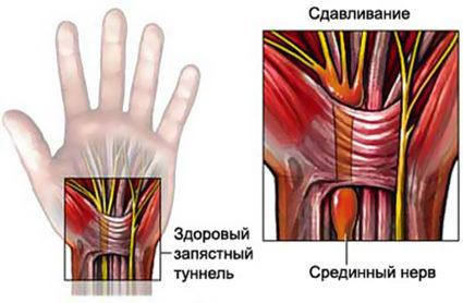 Тендовагинит - синдром запястного канала