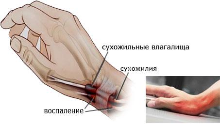 Симптомы тендовагинита