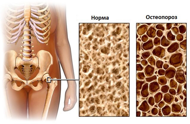 Денситометрия в диагностике остеопороза