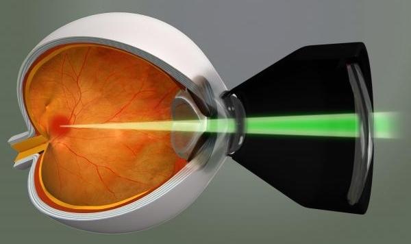 Лечение диабетической ретинопатии - когда нужна операция?