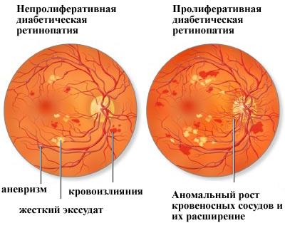Диагностика и лечение диабетической ретинопатии