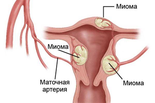 Можно ли сексом при эмболизации