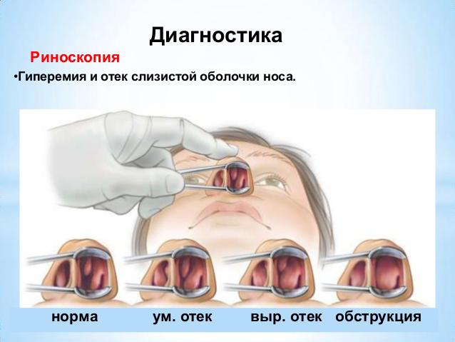 Снять отек слизистой носа в домашних условиях 89