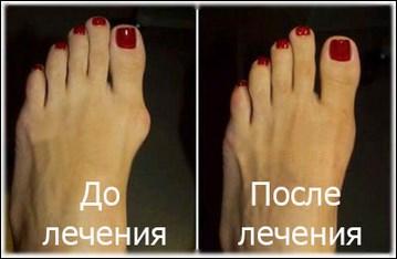 Лазерная коррекция косточек на ногах