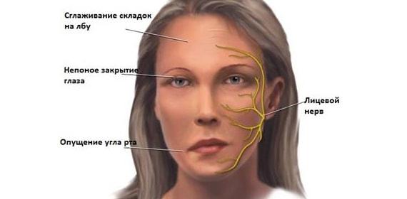 Причины пареза лицевого нерва - симптомы пареза тройничного нерва у взрослых и детей