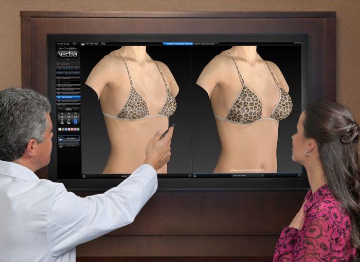 3D визуализация результатов пластической операции до неё