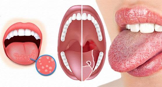Все причины воспаления языка и виды глосситов
