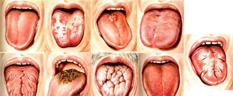 Виды и формы глосситов у детей и взрослых
