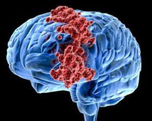Признаки и причины рака головного мозга