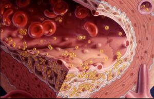 Атеросклероз - типы атеросклероза, симптомы и риски