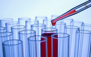 Анализ крови на ЛГ