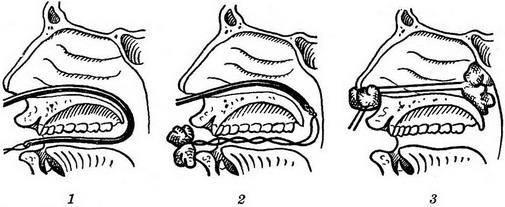 Задняя тампонада носа при носовых кровотечениях