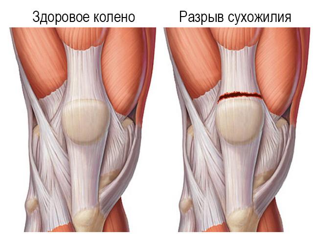 Травма связочного аппарата коленного сустава