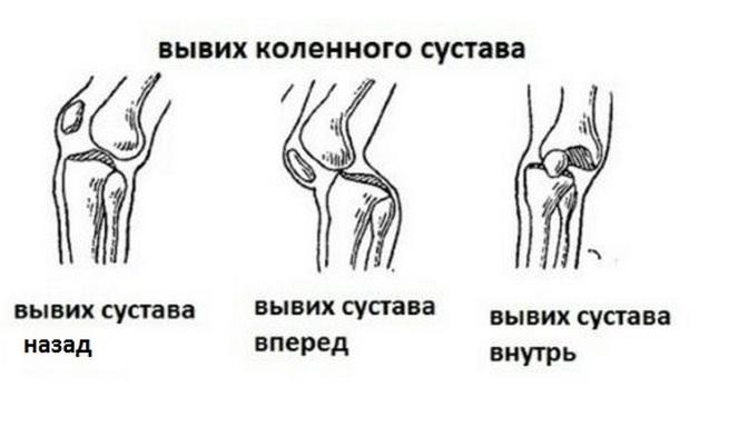 Вывихи коленного сустава - виды травм