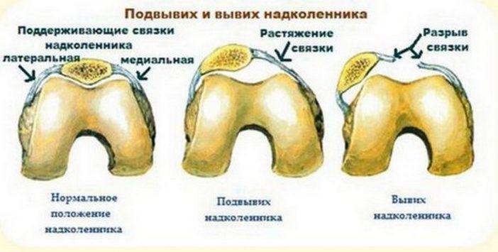 Травма колена - вывих наколенника