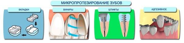 Что такое микропротезирование зубов – виды микропротезирования в стоматологии