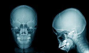 Диагностика и лечение платибазии