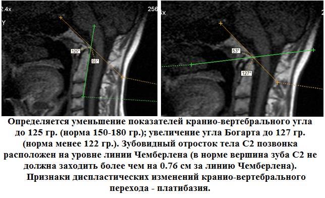 Диагностика платибазии - МРТ