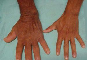 Причины, симптомы акромегалии - лечение акромегалии и операция