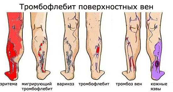 Отличие тромбофлебита от тромбоза