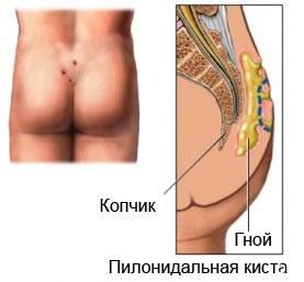 Воспаление пилонидальной кисты копчика и абсцесс