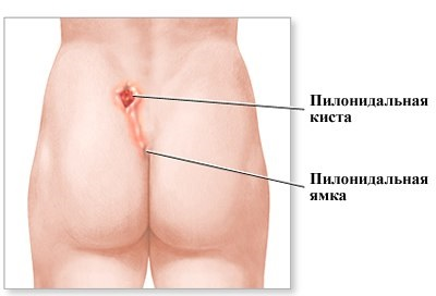 Причины и симптомы пилонидальной кисты на копчике