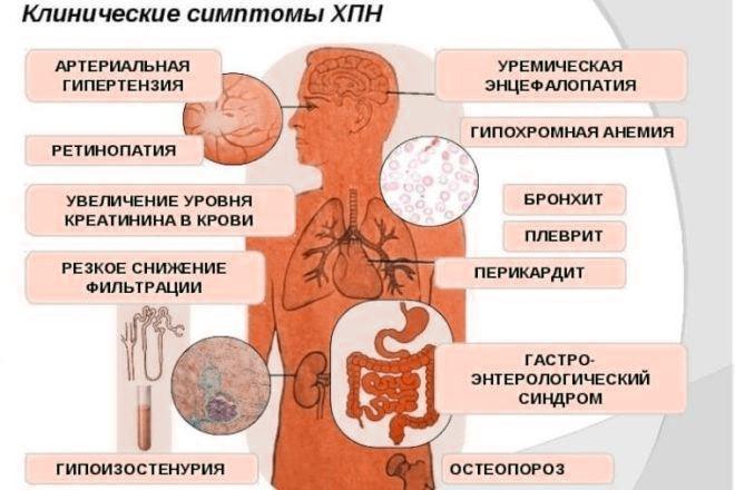 Клинические симптомы ХПН