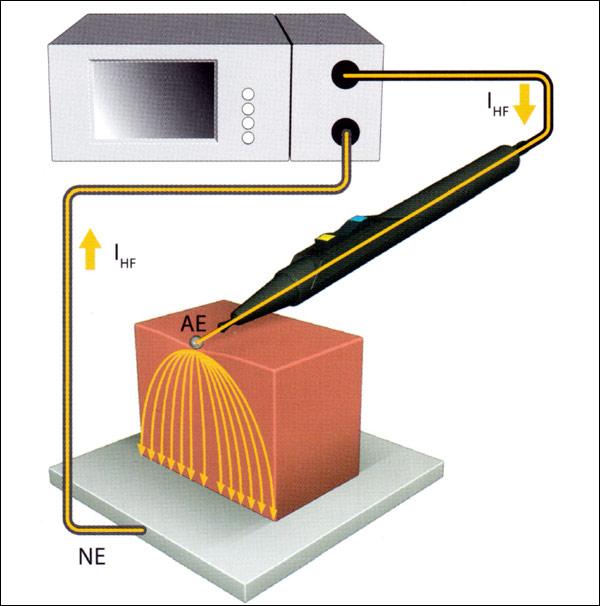 Направление электрического тока при работе электроножа в монополярном режиме