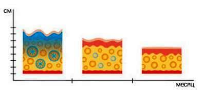 Состояние жировой ткани после криолипосакции