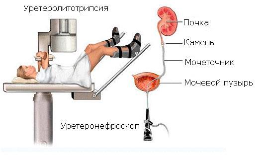 Контактная литотрипсия при мочекаменной болезни