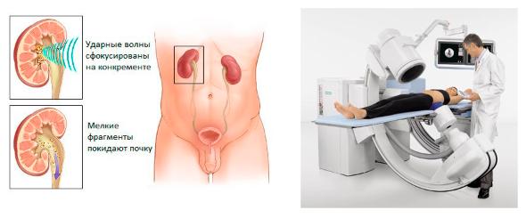 Дистанционная литотрипсия при мочекаменной болезни