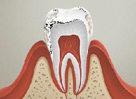 Флюороз зубов - причины и последствия